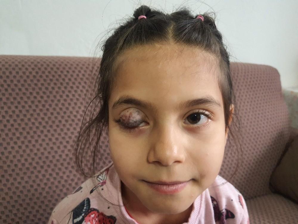 Göz kapağında doğuştan tümör bulunan 7 yaşındaki Beyza'nın yardım çığlığı