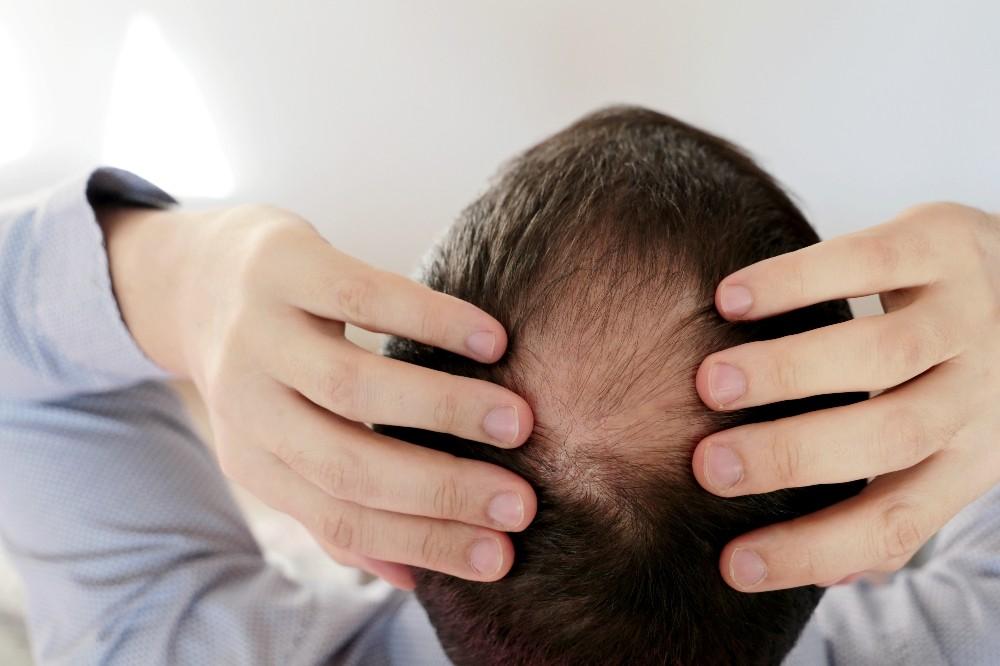 Saçları korona değil stres döküyor